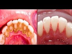 Video shows 3 best ways to remove teeth plaque or tartar at home without visiting a dentist for your dental cleaning. Remedies For Strong and White Teeth: ht. Health And Beauty Tips, Health Tips, Teeth Whitening, Home Remedies, Baking Soda, Beauty Hacks, Health Fitness, Food And Drink, Homemade