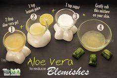 Sagging Skin Remedies aloe vera gel remedy for blemishes Natural Acne Remedies, Home Remedies For Acne, Skin Care Remedies, Health Remedies, Overnight Acne Remedies, Acne Skin, Acne Scars, How To Treat Acne, Aloe Vera Gel