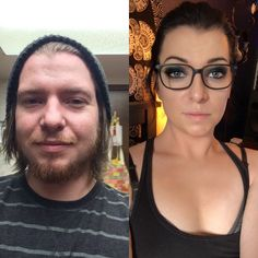Was thinking about how clear my skin is the other day and found this pic that shows how swollen and puffy I looked a couple years ago, and how huge and stretched all the pores on my face. Male To Female Transgender, Transgender People, Transgender Girls, Male To Female Transition, Mtf Transition, Male To Female Transformation, Transgender Transformation, Spiritual Transformation, Trans Mtf