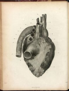 Heart, calcinosis of the myocardium. By William Clift.