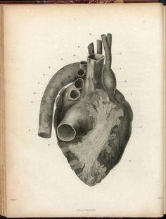 William Clift, Heart, calcinosis of the myocardium