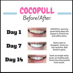 Coconut Oil Pulling Benefits Brighter, Whiter Teeth - helps remove coffee and tea stains on teeth without using harmful chemicals that bleach the teeth and irritate the gums. Gets Rid of Bad Breath Fa (Diy Face Whitening) Teeth Whitening Remedies, Charcoal Teeth Whitening, Natural Teeth Whitening, Whitening Kit, Essential Oils Teeth Whitening, Activated Charcoal Teeth, Jillian Michaels, Coconut Oil Pulling Benefits, Pulling With Coconut Oil
