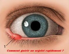 Orgelets Causes Symptômes d'un orgelet Orgelet contagieux ? Orgelet traitement et soin naturel ? Orgelets Causes Un orgelet ou compère-Loriot dans le langage commun est une petite bosse douloureuse à l'intérieur ou à l'extérieur de la paupière. Il s'agit plus précisément d'un abcès rempli de pus qui est habituellement causé par une infection de l'œil […]