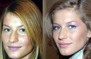 What Celebrities Know About Plastic Surgery That We Don't ... Wow .. its amazing what you can find while searching out images for porcelain veneers and more http://www.thedaviedentist.com/home