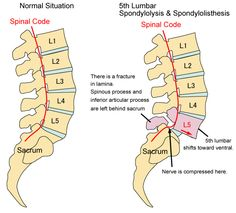 spondylolisthesis~exactly as mine looks except mine is slipped farther forward. Spondylolisthesis, Sports Therapy, Sciatic Pain, Spine Health, Ankylosing Spondylitis, Nursing Tips, Nerve Pain, Medical Information, Anatomy And Physiology