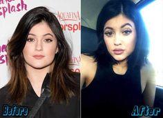 Kylie Jenner Lips Augmentation Before and After | http://plasticsurgeryfact.com/kylie-jenner-plastic-surgery-before-and-after/