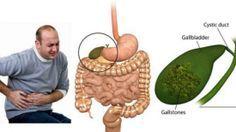 Ce traitement chinois permet d'enlever les calculs de la vésicule biliaire en seulement 7 jours !