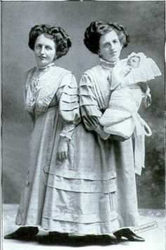Rosa & Josefa Blazek (Jan. 20th, 1878-March 30th, 1922).  Rosa and Josefa hailed from Bohemia and were joined at the posterior.  Since they shared a vertabra, a separation was out of the question.  In 1909, Rosa shocked the world by announcing she was pregnant.  She had a son and named him Franz, but it is now believed that Franz was adopted and that this was a cleverly timed publicity stunt.  The sisters died within minutes of each other in 1922.