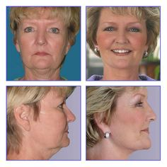 Lifting the Veil From Cosmetic Surgery Facts: What is Cosmetic Surgery?