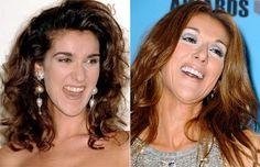 Celine Dion before and after veneers.