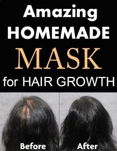 Amazing homemade mask for hair growth
