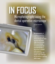 In Focus: Microphotography using the Dental Operative Microscope - Dentaltown