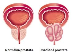 RG Hospital is one of the best Enlarged Prostate Treatment center in India. We are providing the best Enlarged Prostate Treatment with the help of our expert urological surgeons. Holistic Nutrition, Proper Nutrition, Health And Wellness, Wellness Tips, Health Care, Prostate Cancer Treatment, Prostate Massage, Ayurveda, Reiki