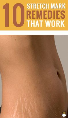 10 Stretch Mark Remedies That Actually Work