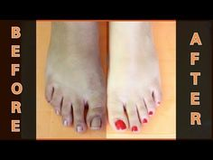 FEET WHITENING PEDICURE (at home) - Remove sun tan and get fairer feet instantly