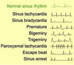 EKG A reason to call so many people Tachy and use it in a medical refrence. Nursing Tips, Nursing Notes, Nursing Cheat Sheet, Nursing Programs, Ecg, Cardiac Nursing, Respiratory Therapy, Medical Assistant, Physician Assistant School