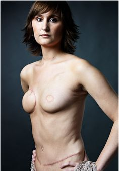 The Scar Project - beautiful portraits of young Breast cancer survivors shot by fashion photographer David Jay.