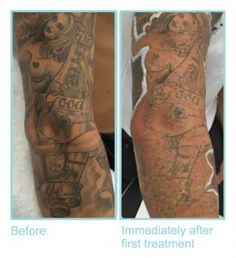 Look the image just after first tattoo removal treatment. This tattoo need 2 to 5 more treatments to remove it permanently.