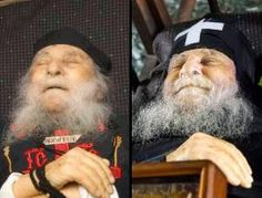 "Elder Joseph of Vatopaidi  L: Repose with mouth open.  R: Afterwards, mouth closed and ""smiling."""