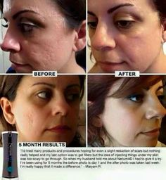 Get started so you can enjoy your skin again :) www.stephpeters.nerium.com