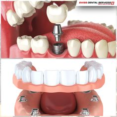 Did you know that implantology protocols are very comprehensive and varied? -------------------------------------------- www.swissdentalservices.com/en #dentist#implants#smile#clinic#ismile