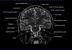 This MRI brain cross sectional anatomy tool is absolutely free to use. This section of the website will explain large and minute details of coronal brain cross sectional anatomy. Caudate Nucleus, Vertebral Artery, Mri Brain, Corpus Callosum, Radiology Imaging, Brain Structure, White Matter, Brain Anatomy, Psychology Major
