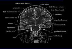 brain anatomy | MRI coronal brain anatomy | free MRI cross sectional anatomy |