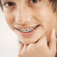 Orthodontic/Braces FAQs #LoudounOrthodontics www.loudounorthodontics.com