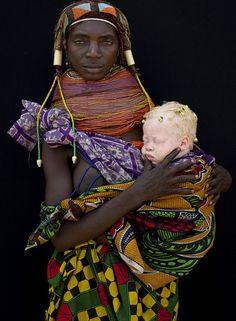 Mother with Albino Baby - Angola