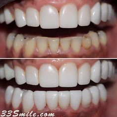 Several years later our patient is back for her lower veneers! And we are loving her result! #drjamsmiles #33Smile . . All photos and video of patients are of our actual patients. All media is the of Cosmetic Dental Associates. Any use of media contained herein is prohibited without written consent. . . #satx #satxdentist #dentistry #goals #smile #teeth #instagoals #transformationtuesday #beforeandafter #whiteteeth #perfect #transformation #teethwhitening #veneers #Invisalign #porcelainveneer Zahn Bleaching, Insta Goals, Porcelain Veneers, Dental Cosmetics, Dental Procedures, We Are Love, Cosmetic Dentistry, Transformation Tuesday, White Teeth