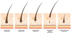 Understand the hair growth! learn more about your hair. Hair growth involes stages and of them four stages are described briefly. Read the whole article. Hair Growth Stages, Hair Growth Cycle, New Hair Growth, Healthy Hair Growth, Best Hair Removal Products, Hair Removal Methods, Laser Hair Removal Treatment, Hair Shedding, Hair Regrowth