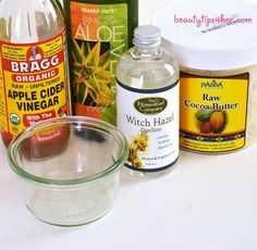 Treat Your Varicose Veins With a Homemade Lotion - A Homemade Remedy for Varicose Veins | Look Good Naturally