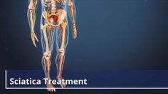 Relieving the painful symptoms of sciatica requires treating the problem that is causing the sciatica. What helps one patient's sciatica may not work for another, and the duration of the symptoms also varies among patients.