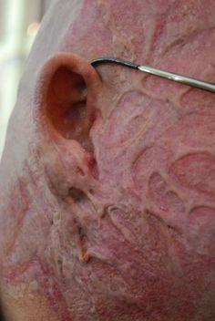 how to break up scar tissue in shoulder