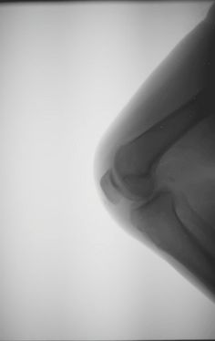 X-ray of knee in motion (GIF).