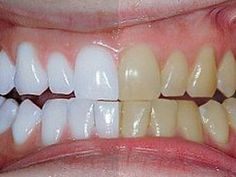 Don't Break The Bank; A Mom's Trick To Whiter Teeth