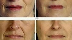 In case you notice wrinkles forming on the face then try this recipe it is amazing! It works well for the face and neck too and you can see results in just