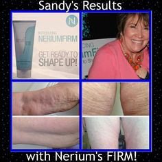 Mom's results with Nerium Firm!! www.try.nerium.com
