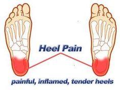 Top Five Foot Heel Pain Remedies