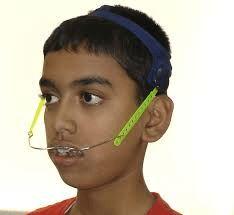 Headgear in orthodontics