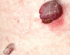 There are a few of the very best methods that you can make use of to remove your skin tags.