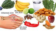 Home Remedies For Gout  Baking Soda Apple Cider Vinegar Cherries Turmeric Lemon Juice