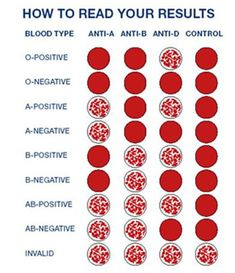 Undefined Clinical Chemistry Lab Tech Blood Types Type Chart Medical Laboratory