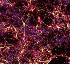 Transforman+células+de+la+piel+en+neuronas+y+células+del+corazón