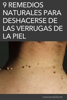 Skin Tag Health And Wellness Health Tips Health Fitness Natural Medicine Pies Healthy Lifestyle Therapy Home Remedies Herbal Remedies, Home Remedies, Natural Remedies, Health Tips, Health And Wellness, Health Fitness, Natural Medicine, Healthy Nutrition, How To Lose Weight Fast