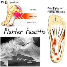 Plantar Fasciitis is one of the most common causes of heel pain. If your wondering whether you have Plantar Fasciitis or have recently been diagnosed with this condition, heres some great information on the Plantar Fascia and how it could have developed. Plantar Fasciitis Remedies, Plantar Fasciitis Treatment, Heel Pain, Foot Pain, Fascia Stretching, Fallen Arches, Vibram Shoes, Flat Feet, Pain Relief