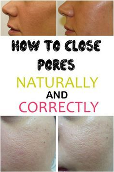 How to close pores naturally and correctly