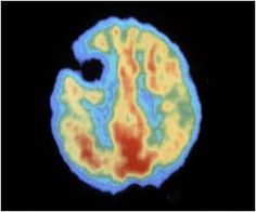Brain Activity Passes Through Newly Detected States to Recover Consciousness
