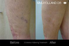 Leg vein treatmeant before and after photos of SpaMedica Toronto patients #LegVeinTreatment #VeinRemoval #LegVein #LaserVeinRemoval http://www.spamedica.com/cosmetic-dermatology-toronto/leg-vein-reduction/