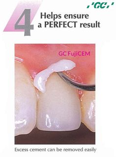 GC FujiCEM - Resin Reinforced Glass Ionomer Luting Cement  The 'PASTE' paste formulation of GC #FujiCEM, consistently dispensed in their correct ratios, means the final cement always has the optimum work ability and clinical performance.  For more info Call us 1800 425 3132.